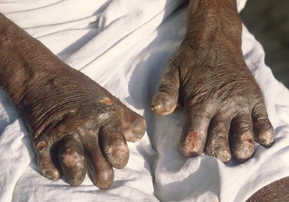 747 new leprosy cases in ne region centre worried