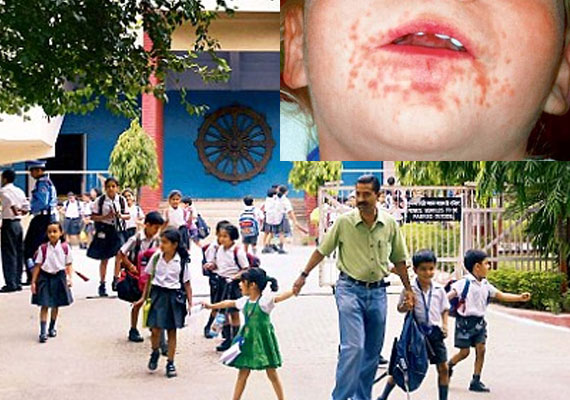 delhi school closes nursery after hand foot mouth disease