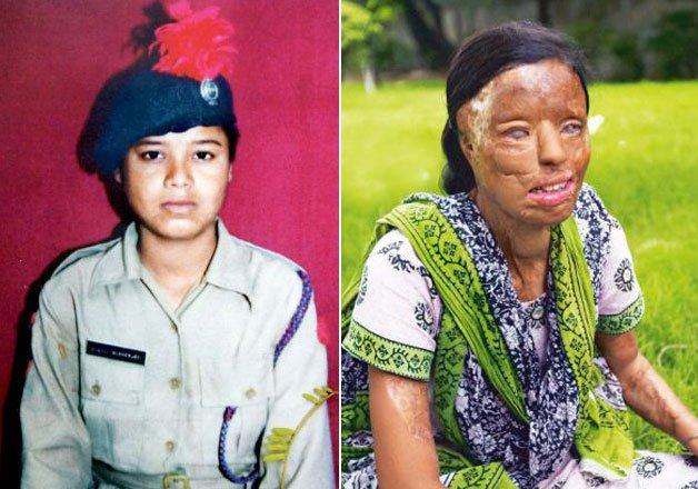 sonali mukherjee 10 facts telling tragic tale of acid