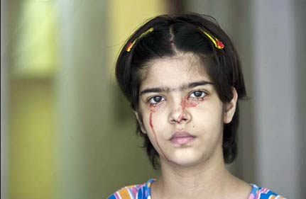 doctors baffled over lucknow girl who cries blood
