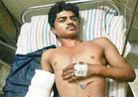 mumbai doctors reattach man s hand severed by electric saw