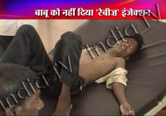 shame child dies in ap for lack of anti rabies vaccine
