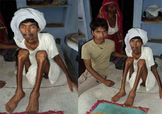silicosis swallows mine workers in rajasthan
