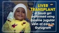 Liver transplant of Saudi girl performed using bovine jugular vein of cow in Gurugram