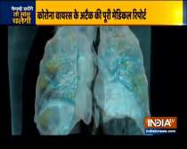 How the novel coronavirus attacks the lungs ?