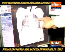 Coronavirus infection can damage your lungs